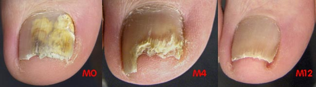 A fungal nail and its resolution with treatment over 12 months